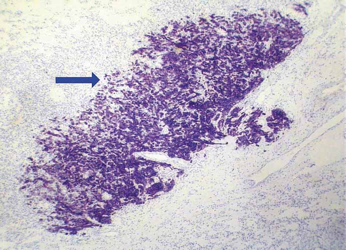 Strong immunoreactivity of metastatic adenocarcinoma for cytokeratin 7