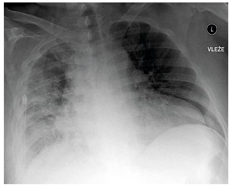 Skiagram hrudníku stejného pacienta vleže po evakuaci 5000 ml výpotku a po provedení pleuroskopické talkáže pravostranné pleurální dutiny
