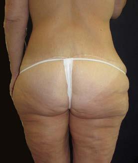 Lower body lifting – pohled zezadu