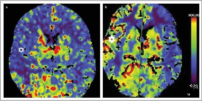 Perfuzní CT se zátěží Diamoxem před revaskularizací 19/100 ml/min (a) a po revaskularizaci 46/100 ml/min (b) v teritoriu a. cerebri media vpravo.<br> Fig. 2. CT perfusion with Diamox challenge before revascularization 19 ml/100 ml/min (a) and after revascularization 46 ml/100 ml/min (b) in the right middle cerebral artery territory