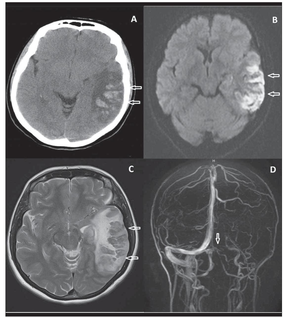 Fig. 1. (A) CT – broad, expansive, hypodense area (arrows) harbouring haemorrhagic foci up to 2 cm in the left temporoparietal region. (B) MRI, diff usion weighted image – restricted diff usion (arrows) in the left temporoparietal region. (C) MRI, T2-weighted image – large left temporooccipital cortical-subcortical hyperintense lesion with focal haemorrhage. (D) MRI venography – absence of fl ow (arrow) in the left transverse and sigmoid sinuses.<br> Obr. 1. (A) CT – rozsáhlá expandující hypodenzní oblast (šipky) obsahující až 2 cm velká hemoragická ložiska v levé temporoparietální oblasti. (B) Difúzí vážená MR – restrikce difúze (šipky) v levé temporoparietální oblasti. (C) MR, T2 vážený obraz – vlevo rozsáhlé temporookcipitální kortikální až subkortikální hyperintenzní ložisko s fokální hemoragií. (D) MR venografi e – absence průtoku (šipka) v levém sinus transversalis a sinus sigmoideus.