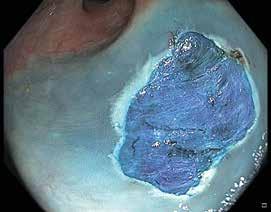 Obr. 9.2. Spodina po endoskopické resekci s patrnou modře zabarvenou submukózou