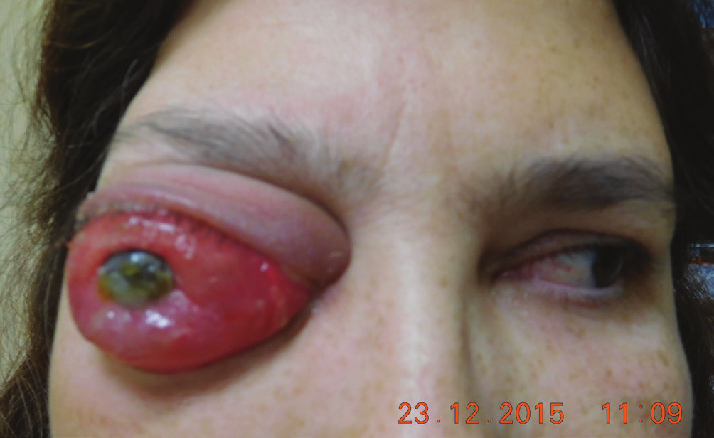 Clinical finding in 12/2015, eye globe prolabse through the eyelid, progression of corneal lesion