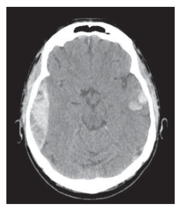 Fig. 1. Brain CT, axial scan. Adult patient with epidural hematoma – surgical therapy (associated injuries).<br> Obr. 1. CT mozku, axiální řez. Dospělý pacient s epidurálním hematomem – chirurgické řešení (další přidružená poranění).