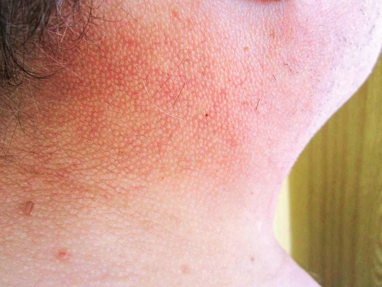 Kůže v oblasti krku u pacienta se skleredémem
