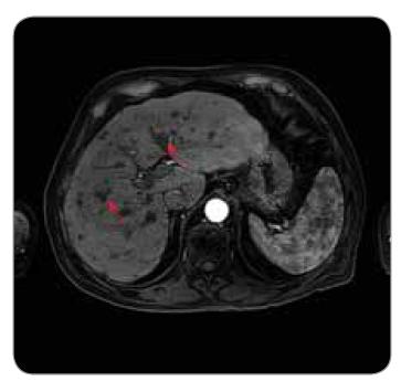 Obr. 3b. MR nález u pacienta po liečbe - postkontrastná T1w sekvencia v artériovej fáze. Viditeľná je výrazná veľkostná regresia jednotlivých ložísk (červené šípky). Zároveň je možné vidieť zmenu charakteru postkontrastného sýtenia – ložiská sú hypointenzívne, bez obrazu vysycovania v artériovej fáze – intenzita signálu je nižšia v porovnaní s červenou pulpou sleziny.