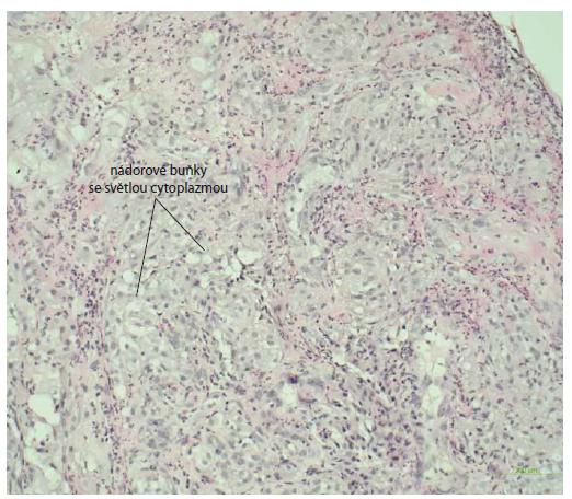 Histologický nález vredu duodena s infi ltráciou nádorových buniek (metastáza karcinómu obličky), farbenie hematoxin-eozinom, zväčšenie 20×.<br> Fig. 8. Histological image of a duodenal ulcer with infiltration of tumour cells (metastasis of renal cell carcinoma), haematoxylin-eosin staining, magnification20?×.