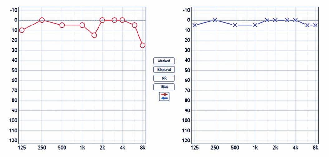 "Audiometrické vyšetření. Pokles křivky vpravo (červená barva) o 5 dB (v hlubokých frekvencích) a ""zub"" na frekvenci 1 500 Hz ve srovnání se zdravou (levou) stranou (modrá barva).<br> Fig. 1. Pure tone audiometry. This audiogram shows 5 dB hearing loss in the low frequencies in the right ear (red color) and decrease at 1,500 Hz in comparison with the left ear (blue color)."
