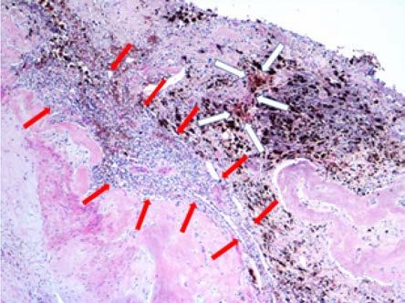 Zbytky světlobuněčného karcinomu (označeno červenými šipkami), bílé šipky ozačují ložiska hemosiderinu, nejspíše související s organizací krevních sraženin v místě regrese nádoru po léčbě; původní zvětšení x40, hematoxylin-eosin<br> Fig. 4. Residuals of clear carcinoma (marked with red arrows), white arrows mark hemosiderin foci, most likely related to the organization of blood clots at the site of tumor regression after treatment. Original magnification x40, hematoxylin-eosin