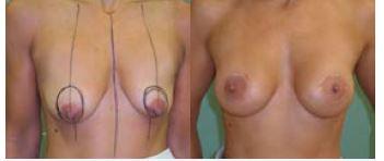 Obr. 2a Augmentace s periareolární pexí<br> Obr. 2b Augmentace s periareolární pexí – po operaci