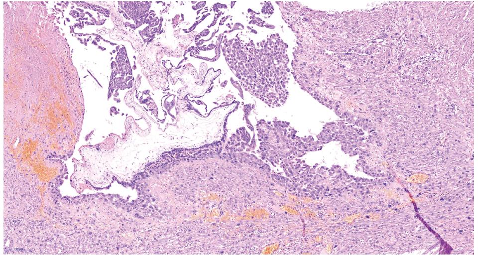 Choriový klk s proliferujícím trofoblastem – hematoxylin eozin
