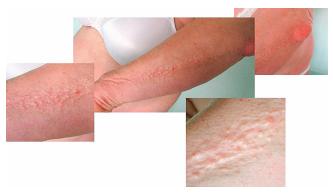 Fotografie kůže pacientky se skleromyxedémem: zřetelná lineární konfigurace papul