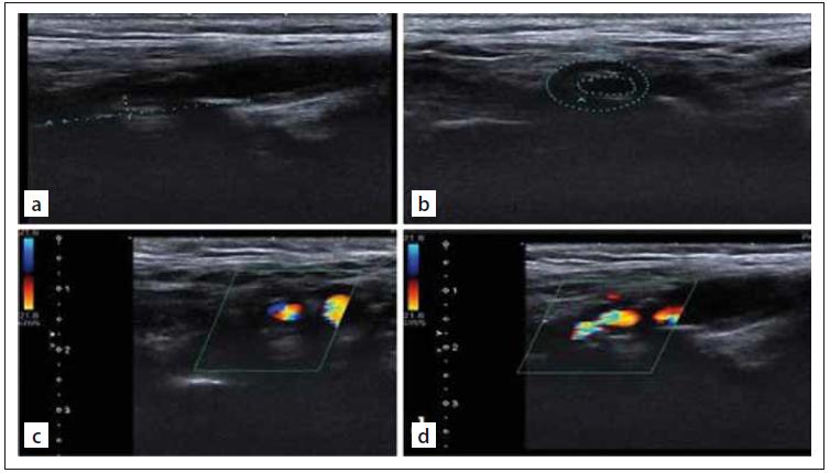 Internal carotid artery imaging. Gray-scale US images of severe (80%) internal carotid artery stenosis (a, b). Colour Doppler US images of severe (80%) internal carotid artery stenosis (c, d).<br> Obr. 1. Zobrazování vnitřní karotidy. UZ zobrazení stupnice šedi těžké (80%) stenózy vnitřní karotidy (a, b). Barevné dopplerovské UZ zobrazení těžké (80%) stenózy vnitřní karotidy (c, d).