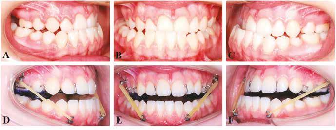 Třináctiletá pacientka s obráceným skusem, pravostranně zkříženým skusem a posunem středu horního a dolního zubního oblouku; intraorální fotografie: (A–C) stav před zavedením skeletálních miniplatů typu Bollard; (D–F) nasazení elastických mezičelistních tahů a snímacího ortodontického aparátu ke zvýšení skusu.<br> Fig. 4 Thirteen-years-old girl with skeletal class III malocclusion with right-side cross bite and middle lines shift of the upper and lower dental arches; intraoral pictures: (A–C) state before insertion of the Bollard skeletal miniplates; (D–F) pacient with intermaxillary elastics and removable orthodontic appliance