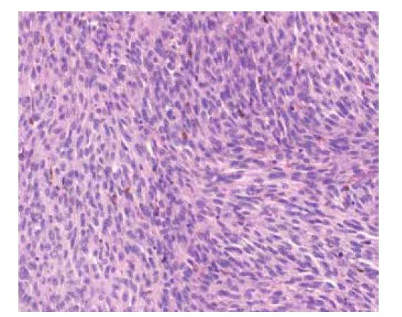 Mikroskopický snímek po obarvení hematoxylinem a eosinem – patrné jsou vřetenité nádorové buňky s hnědými granuly pigmentu melaninu