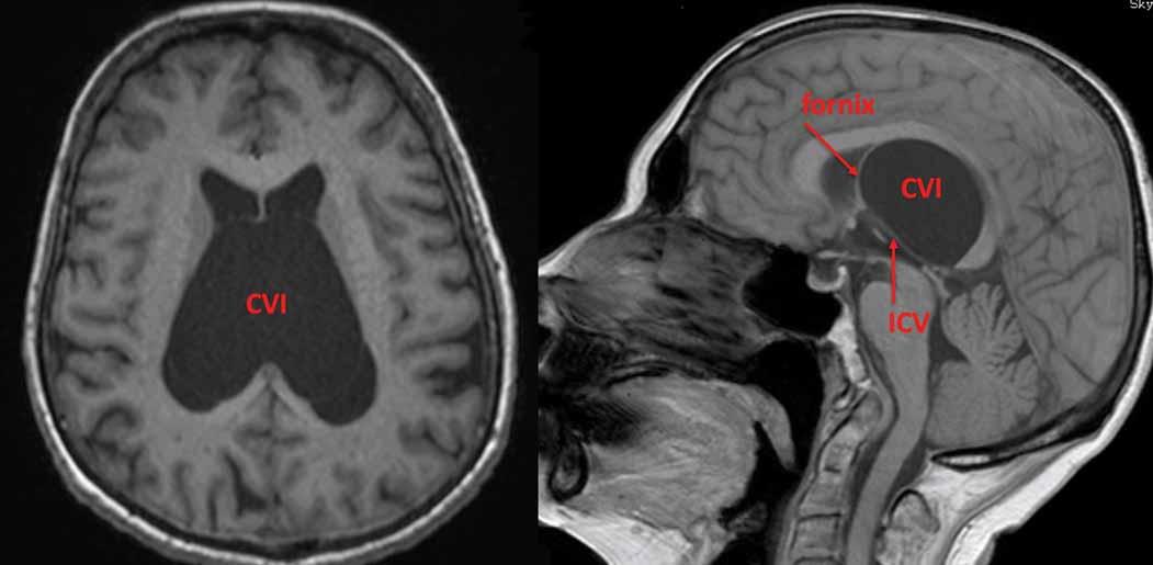 Symptomatická cysta CVI. Fornixy jsou vytlačeny dopředu a ICV dolů spolu se stropem III. komory. CVI – cavum veli interpositi; ICV – vnitřní mozková žíla<br> Fig. 4. Symptomatic CVI cyst. Fornices are elevated anteriorly and ICVs are pushed down together with the roof of the IIIrd ventricle. CVI – cavum veli interpositi; ICV – internal cerebral vein