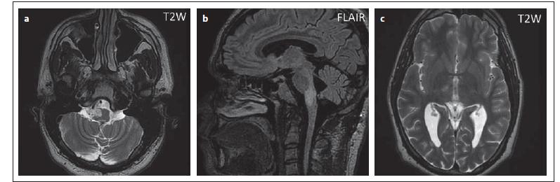 Pacient č. 7: hypersignální ostře ohraničené ložisko v T2 váženém obraze (a), ve FLAIR je patrný rozsah postižení oblongáty, v této sekvenci již není ohraničení tak ostré jako v T2 váženém obraze (b), hypersignální ložisko v pravém talamu, imitující lakunární infarkt (c).<br> Fig. 10. Patient No. 7: a hypersignal ovoid lesion in T2WI (a), in FLAIR the extent of involvement of the medulla oblongata is evident; in this sequence, the boundary is no longer as sharp as in T2WI (b); a hypersignal lesion in the right thalamus imitating lacunar infarction (c).