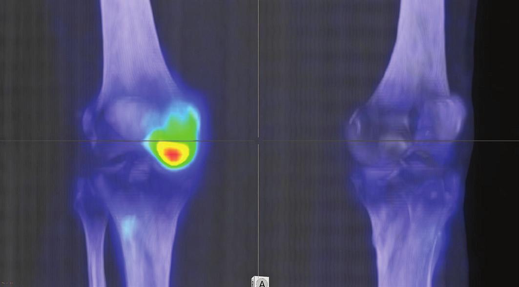 3D rekonstrukce fúzovaného SPECT/CT obrazu u téhož pacienta s osteonekrózou mediálního kondylu femuru v časném stádiu (I).