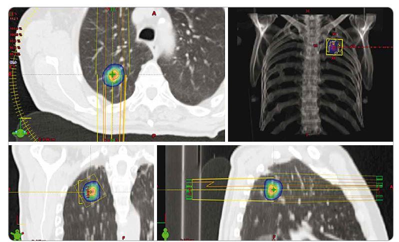 Izodózní plán SBRT spinocelulárního karcinomu pravé plíce u 70letého pacienta, T1a, medicínsky inoperabilní pro četné vážné komorbidity, dávka 3 × 18 Gy, předpis dávky na 80% izodózu. PTV 20 ccm, D min. 50,1 Gy, D max. 75,7 Gy. SBRT – extrakraniální stereotaktická radioterapie, PTV – plánovací cílový objem, D – dávka záření, Gy – Gray