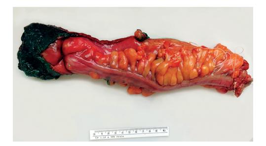 Preparát rekta obarvený tuší<br> Fig. 3: Specimen of rectum coloured with ink