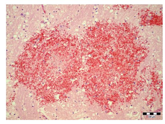 Zmeny charakteru čerstvých intraparenchymatóznych a perivaskulárnych krvácaní (hematoxylín-eozín, zväčšenie 200x).