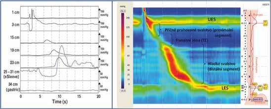 Zobrazení konvenční manometrií vs high-resolution manometrií