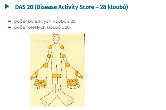 DAS 28 – hodnocené klouby (Aletaha D, Smolen J. Clin Exp Rheumatol 2005; 23(Suppl 39): 100–108 a Aletaha D, Ward MM, et al. Arthritis Rheum 2005; 52: 2625–2636)