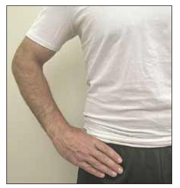 """C sign: Pokud pacient lokalizuje bolest při uchopení anterolaterální hlavice kyčle palcem a ukazováčkem ve tvaru """"C"""", mělo by být podezření na intraartikulární patologii."""