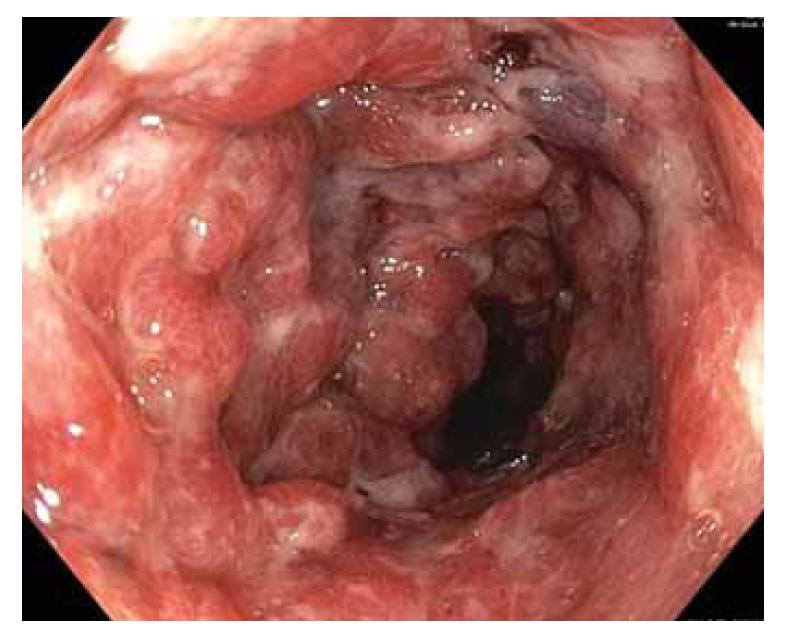 Obr. 2a) Koloskopický nález pokročilé zánětlivé změny v levém tračníku.<br> Fig. 2a) Colonoscopic finding of advanced inflammatory change in the left colon.