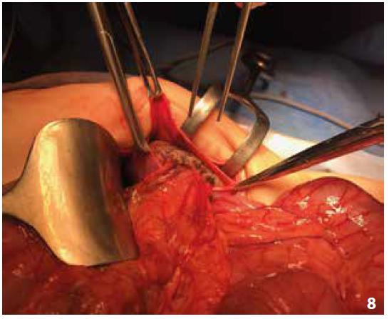 Obr. 8: Uložení sleziny do extraperitoneální kapsy<br> Fig. 8: Placement of the spleen into the extraperitoneal pocket