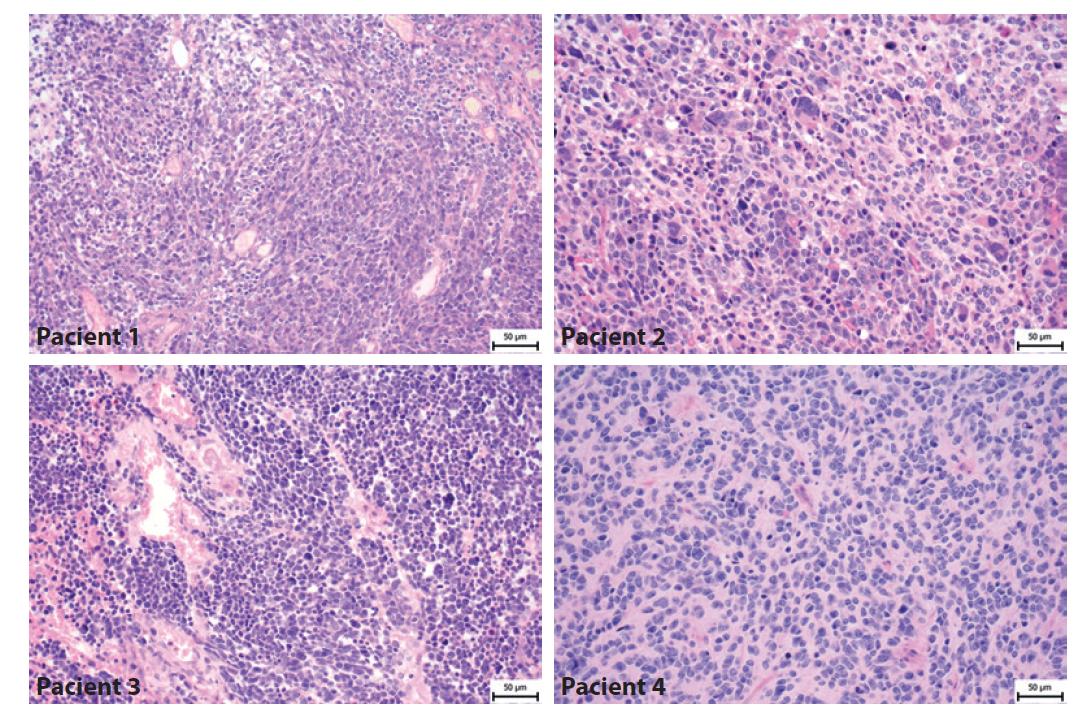 Histologický nález pacientů s meduloblastomem. Pacient 1- Klasický meduloblastom tvořený hustě nakupenými atypickými protáhlými buňkami s oválnými jádry. Pacient 2 - Velkobuněčný/anaplastický meduloblastom tvoří kromě menších atypických buněk i četné obrovské buňky s výrazně nepravidelnými jádry. Pacient 3- Velkobuněčný/anaplastický meduloblastom je složený jednak z oblastí vzhledu klasického meduloblastomu, ale převažují úseky tvořené většími polygonálními buňkami s anaplastickými rysy a s velkými jádry místy s patrnými jadérky. Pacient 4- Klasický meduloblastom tvořený atypickými protáhlými buňkami, které místy naznačeně tvoří rytmické struktury.