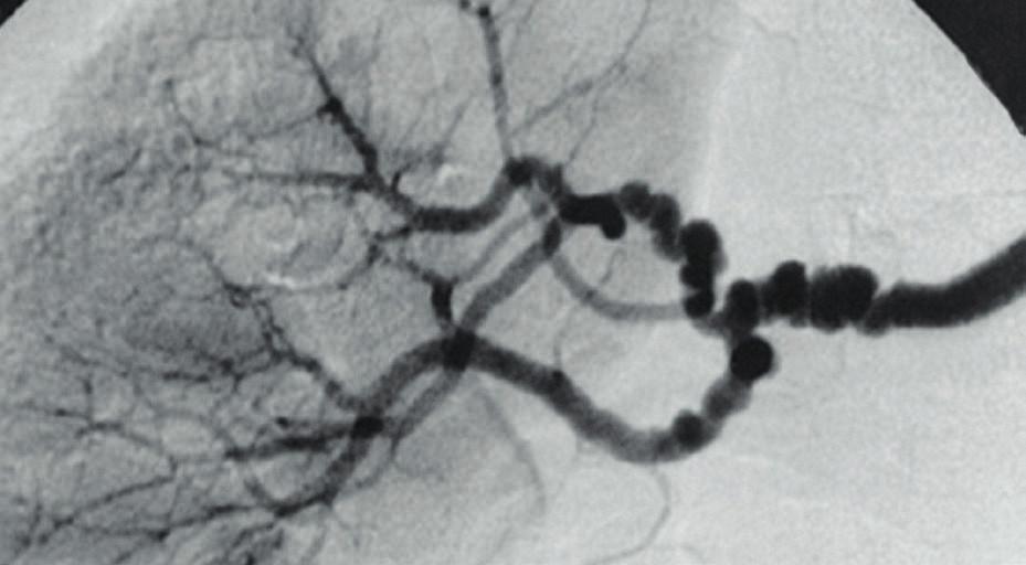 """String of beads"""" (retiazka korálok) – typický nález v renálnej artérii [25].<br> Fig. 7. String of beads – typical findings in renal artery [25]."""