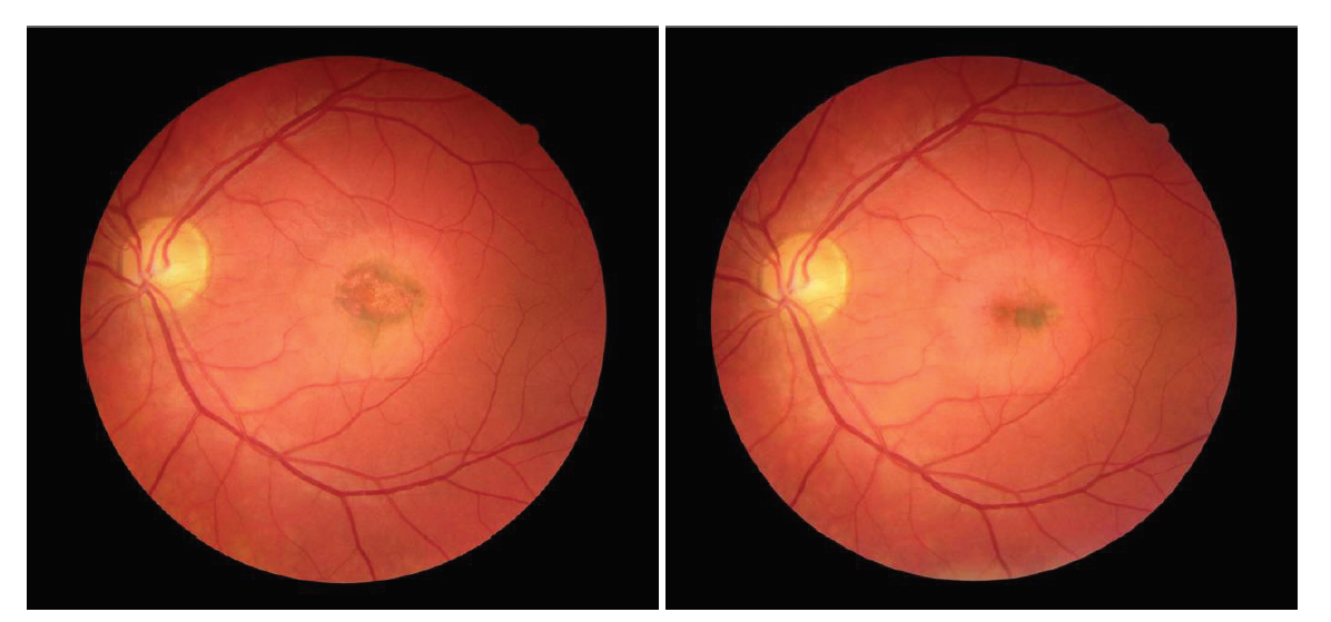 Snímek očního pozadí levého oka pacienta s chorioretinitidou (A), migrace pigmentu centrálně (B)