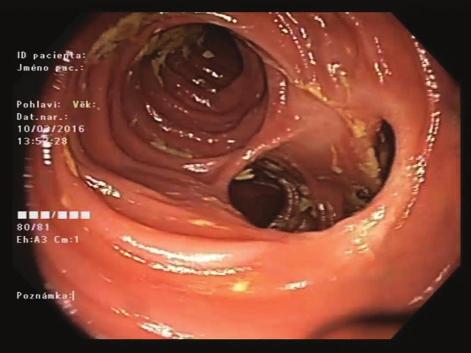Endoskopický pohled na střevní anastomózu (12 měsíců po zákroku)<br> Fig. 2: Endoscopic view of the intestinal anastomosis (month 12 after the procedure)