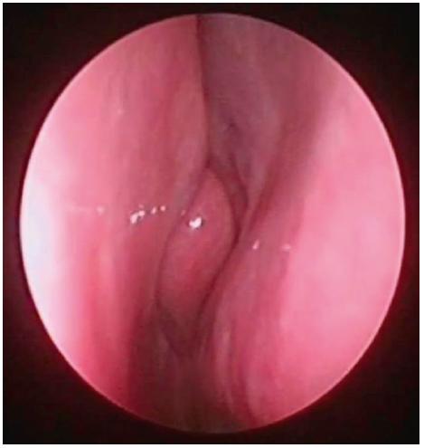 Pohled do nosní dutiny vpravo, endoskopická skupina<br> III – vybočení septa cca v úrovní střední skořepy (tedy typ 3 dle Mladiny), bez zjevné hypertrofie dolní skořepy.