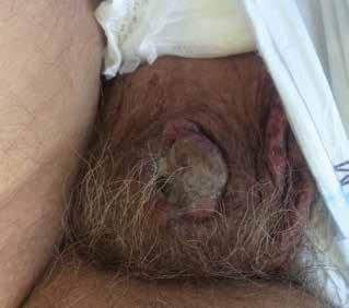 Invazivní spinocelulární karcinom