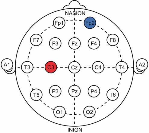 Znázornění protokolu při terapii bolesti u pacientů s fi bromyalgii v systému 10–20. Anoda (červená) nad levou M1 oblastí, katoda (modrá) nad pravým supraorbitálním regionem.<br> Fig. 7. 10–20 representation of therapeutic protocol for fibromyalgia treatment. Anode (red) over the left M1 area, cathode (blue) over the right orbitofrontal area.