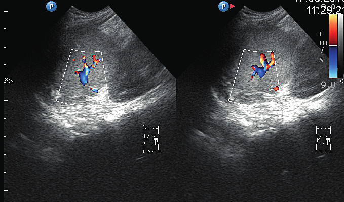 Sonografické znázornenie suficientných prietokov krvi v zachovanej časti sleziny 3 mesiace po operácii.<br> Fig. 3. Ultrasound visualization of sufficient blood flow in the preserved part of the spleen 3 months after surgery.