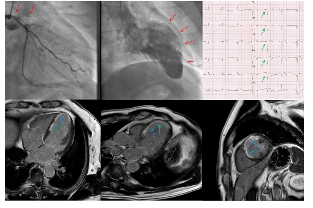 CTO ramus interventricularis anterior (RIA); vlevo nahoře angiografie, ostiální uzávěr RIA, nahoře uprostřed akineza přední stěny a hrotu levé komory při levostranné ventrikulografii (červené šipky); vpravo nahoře EKG s patologickými Q kmity v oblasti přední stěny srdeční (zelené šipky); dole snímky z magnetické rezonance s bíle vyznačeným převážně transmurálním postižením dané oblasti v LGE sekvenci (modré šipky) – CTO nevhodné k intervenci