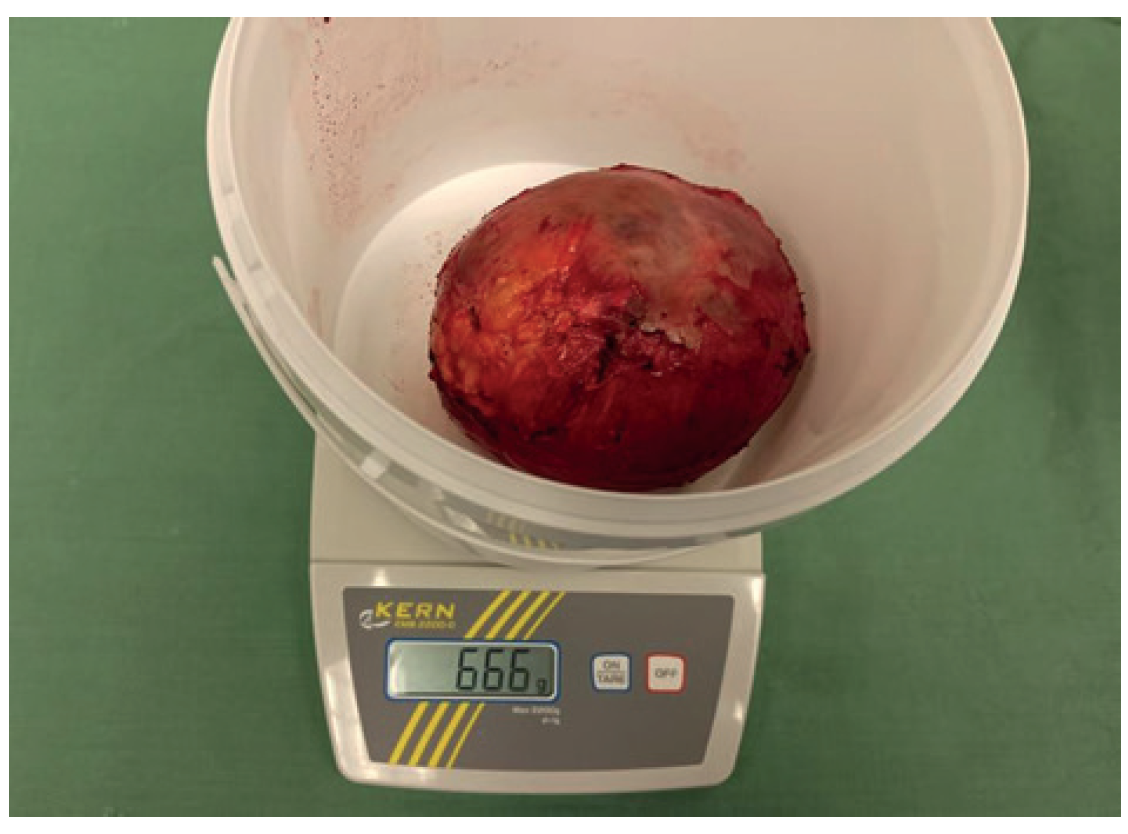 Makroskopická fotografie exstirpovaného tumoru s hmotností 666 g <br> Fig. 4: Macroscopic photography of the removed tumor with weight of 666 g