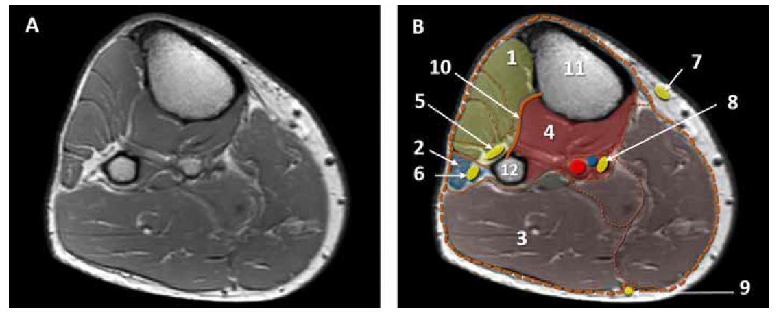 MRI horizontální řez lýtkem, lýtkové kompartmenty. A. nativní obraz. B. kolorovaný obraz: 1. přední kompartment, 2. laterální kompartment, 3. zadní povrchní kompartment, 4. zadní hluboký kompartment, 5. n. peroneus profundus, 6. n. peroneus superficialis, 7. n. saphenus, 8. n. tibialis. 9. n. suralis, 10. membrana interossea, 11. tibie, 12. fibula