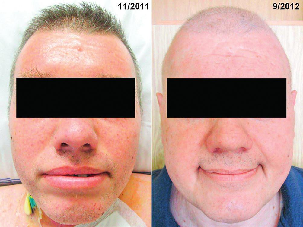 Vlevo: Obličej pacienta se skleredémem: mucinózní infiltrace kůže a podkoží způsobila zesílení kůže a podkoží a omezení hybnosti Vpravo: Obličej pacienta se skleredémem: zlepšení po léčbě