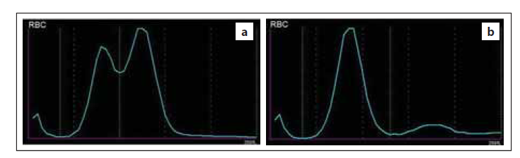 Abnormální průběh distribuční křivky RBC způsobený (a) přítomností dimorfní populace RBC, (b) aglutinací erytrocytů v přítomnosti chladových protilátek (zdroj: laboratoř IV. IHK).<br> RBC – erytrocyty