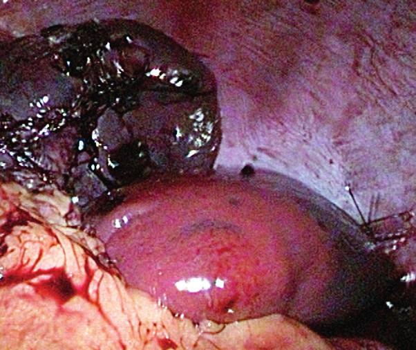 Laparoskopický pohľad na remnant sleziny s dobrou vitalitou.<br> Fig. 2. Laparoscopic view of the remnant of the spleen with good vitality.