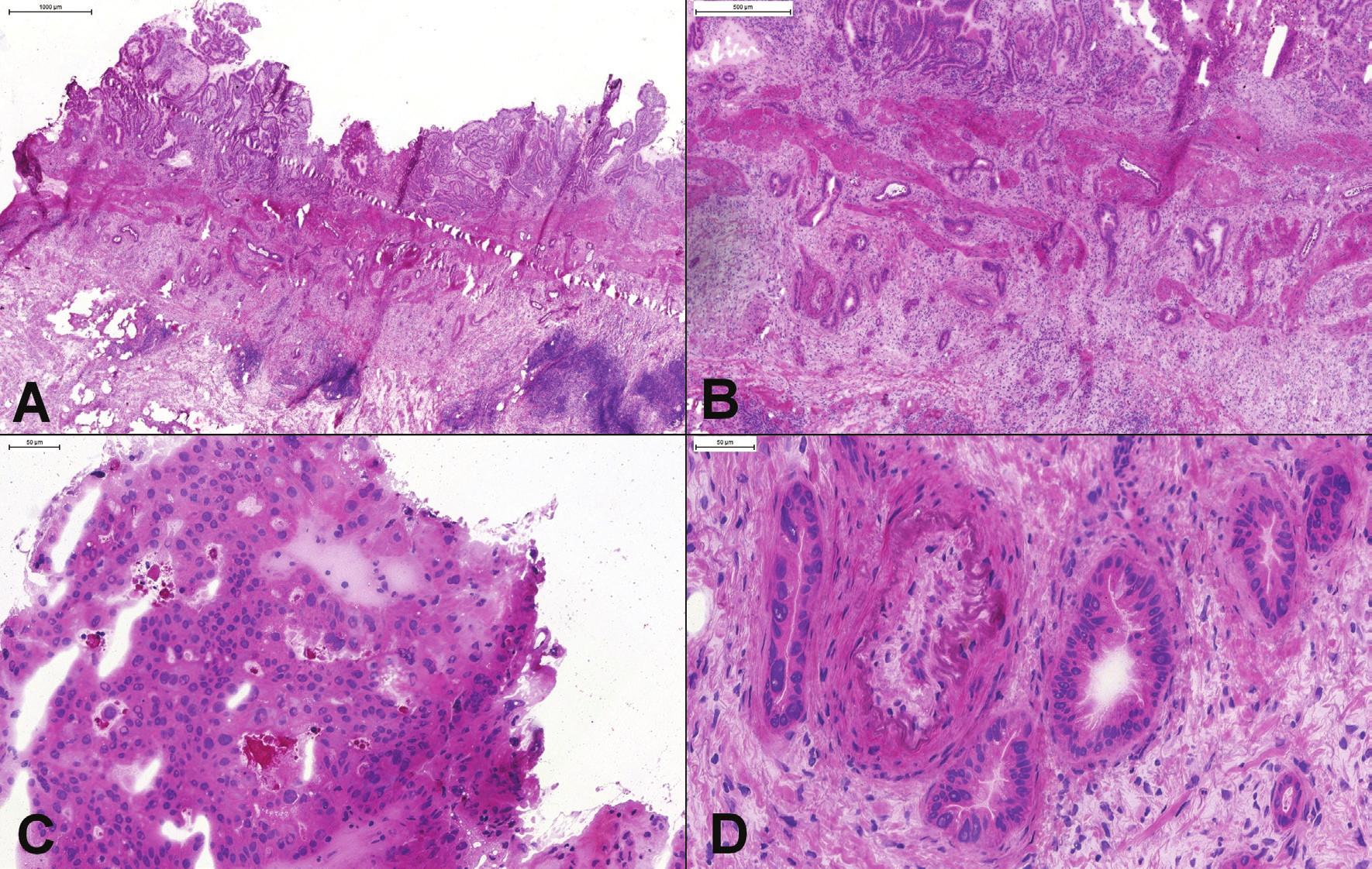 (A, B) Peroperačné vyšetrenie polypoidnej lézie žlčníka, ktorá bola zistená radiologickým vyšetrením pred odberom orgánov od žijúceho darcu. Okrem polypoidnej lézie boli vo svalovej vrstve prítomné náhodne rozmiestnené angulované žliazky, niektoré s horizontálnym priebehom. (C) V polypoidnej časti boli jednoznačne prítomné high-grade dysplatické zmeny (BilIN-3). (D) Atypické žlazky v tesnej blízkosti muskulárnej artérie. Diagnóza dobre diferencovaného adenokarcinómu bola potvrdená aj definitívnym vyšetrením. Odber orgánov bol zrušený.