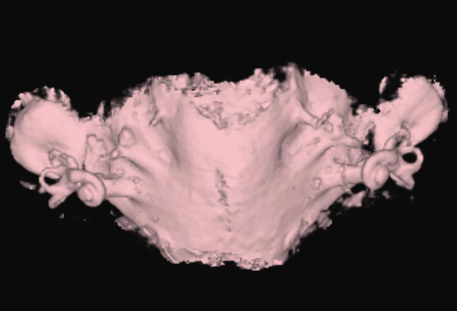 EVA syndrom, syndrom rozšířeného vestibulárního akvaduktu.<br> Fig. 6. Enlarget vestibular aquaeduct.