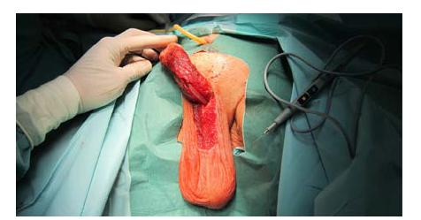 Defekt uretry patrný po zavedení Foley katétru Ch 16 transuretrálně; oba konce uretry předtím kalibrovány do Ch 22<br> Fig. 5. Urethral defect noticeable after insertion of a Ch 16 Foley catheter transurethrally. Both urethral ends previously calibrated for Ch 22