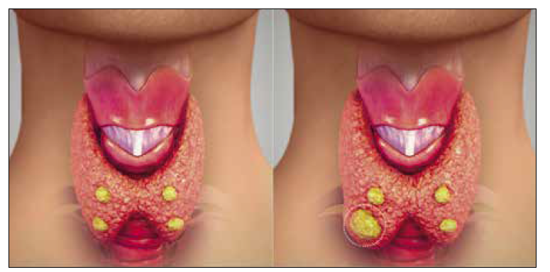 Štítná žláza s příštítnými tělísky (žlutě). Obrázek vpravo ukazuje benigním adenomem zvětšené příštítné tělísko, které je zdrojem primární hyperparatyreózy. [Upraveno podle: wikiwand.com]