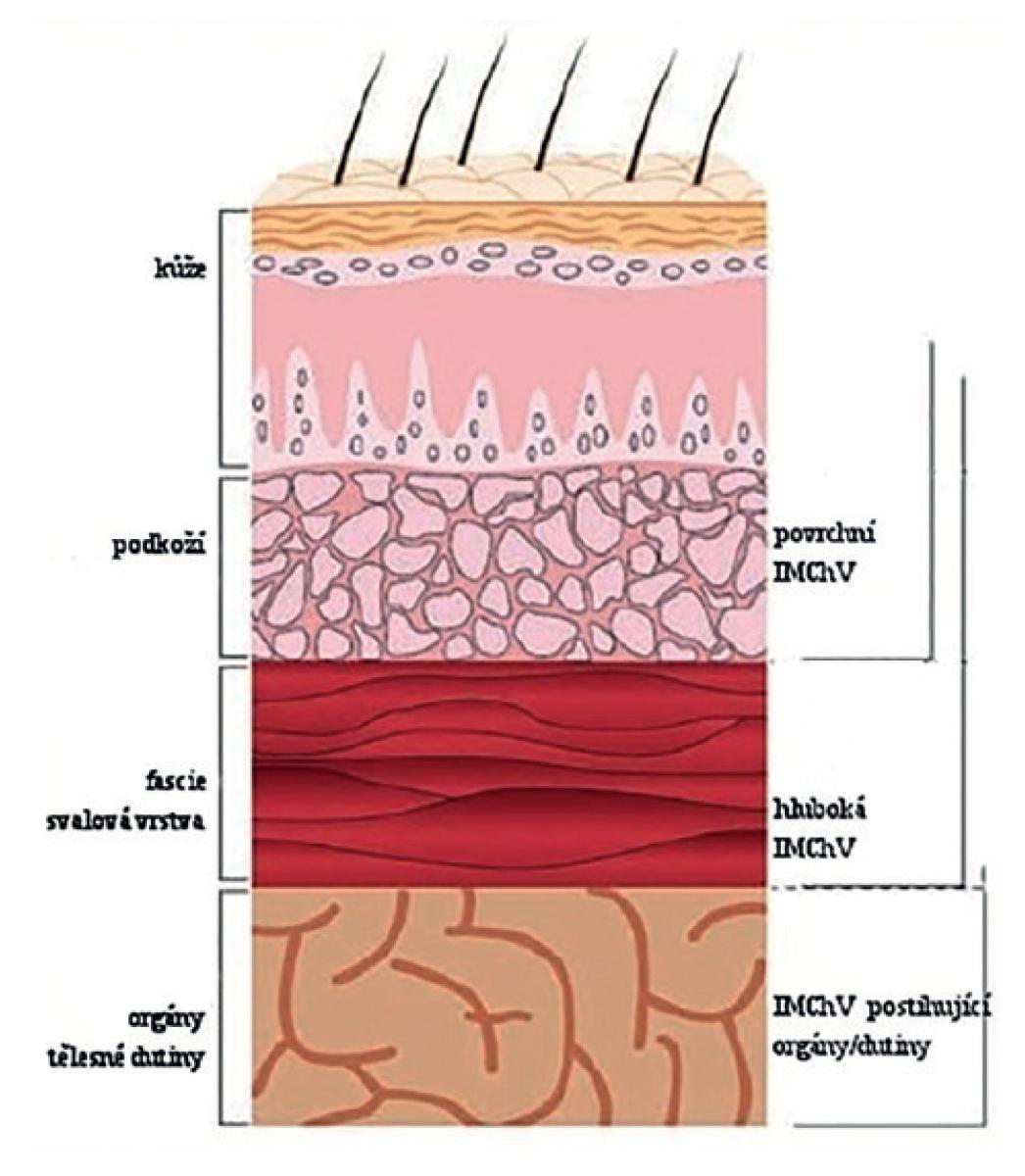 Typy infekcí v místě chirurgického výkonu, převzato z Horan a kol. <br> Fig. 1: Surgical site infection types, adapted from Horan et al.