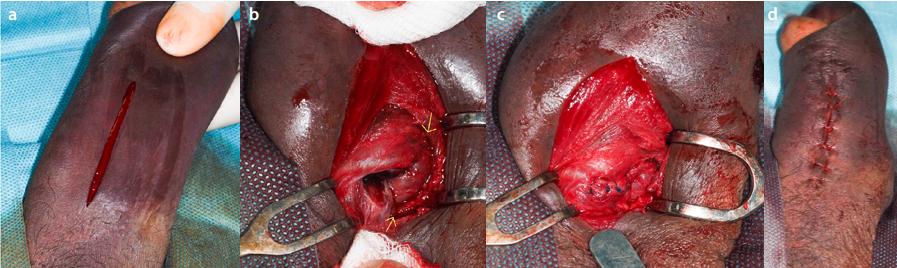 Operační revize<br> Fig. 3. Operation